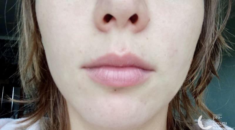 BB-крем Perfect amazing skin «centella asiatica» эффект