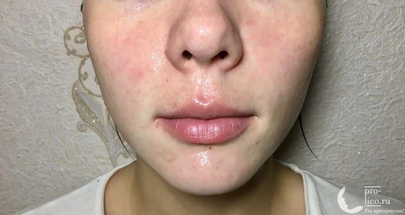 Тканевая маска для лица Consly Anti-Wrinkles «Dragon Fruit» эффект от маски