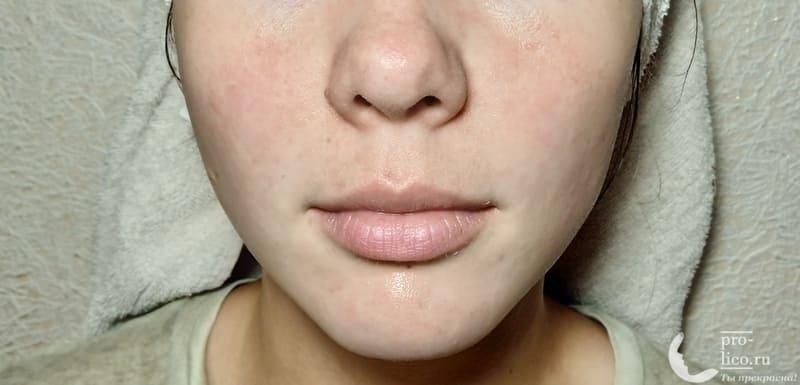 Тканевая маска для лица CONSLY Nourishing «Mango» эффект