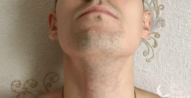 Триммер Philips Series 5000 фото после бритья