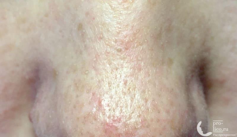 Крем для лица Caviale «Коллагеновый» забитые поры