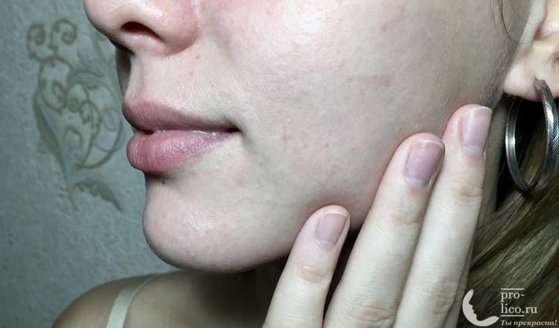 Крем для лица Caviale «Витамин А» на коже