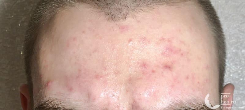 Тканевая маска для лица Consly Anti-Acne «Calamansi» фото после