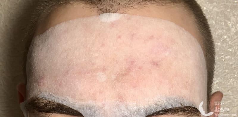 Тканевая маска для лица Consly Anti-Acne «Calamansi» на коже