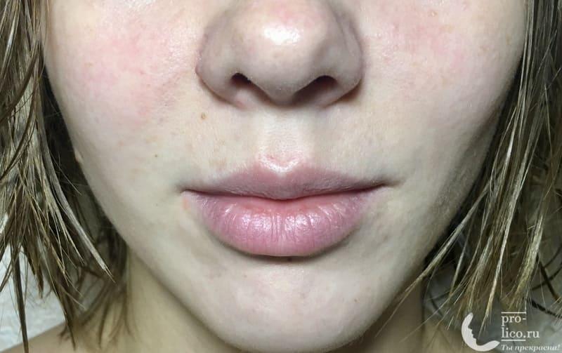 Тканевая маска для лица Consly Detox «Carambola» эффект после применения