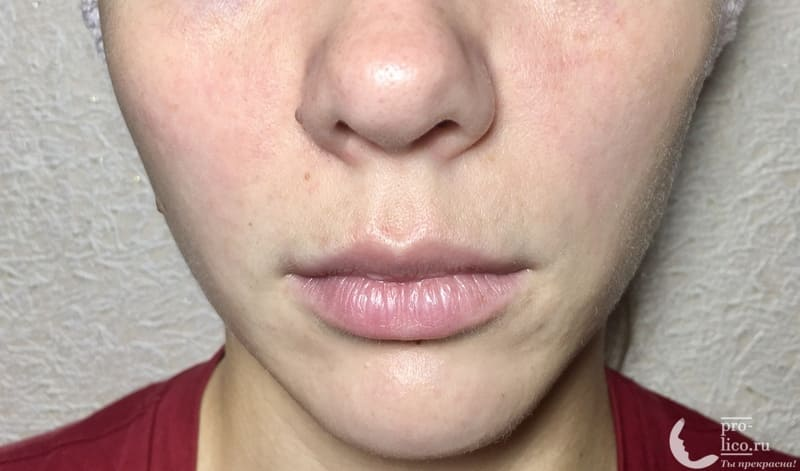 Тканевая маска для лица CONSLY Radiance «Papaya» результат