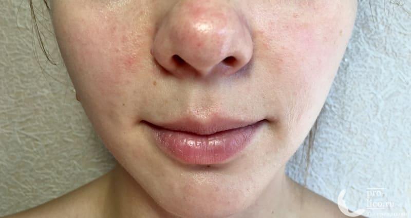 Тканевая маска Little Devil с экстрактом папайи «Омоложение и сияние кожи» после