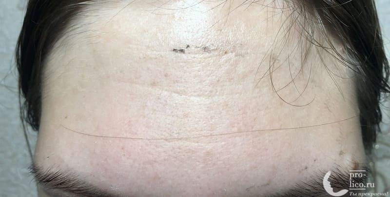 Угольная маска-пленка для кожи лица PEEL-OFF Black Glits&Glam консистенция результат