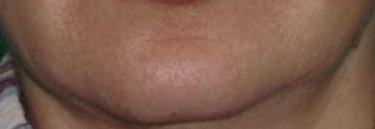 Брыли на лице