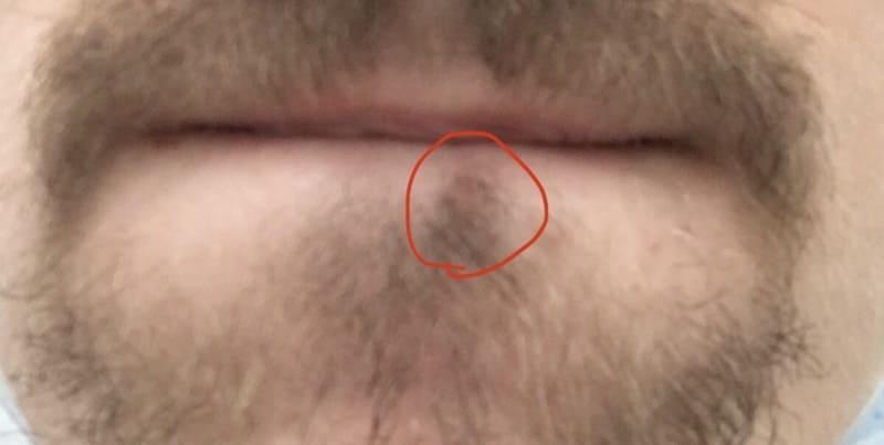 Вот так выглядит родинка на лице под губой